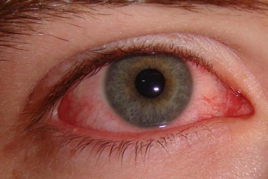 gritty-eyes