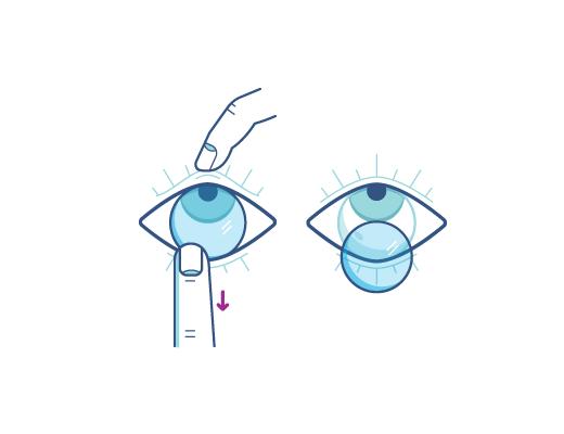 Remove Contact lenses