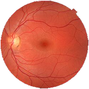 Fundus_photograph_of_normal_eye