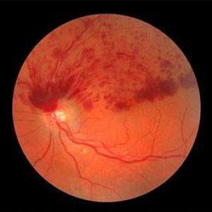 Retinal Vessel Occlusion
